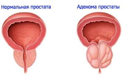 Антигистаминные препараты при гепатите с