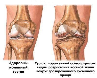 Деформирующий артроз суставов | Клиника Музалевского - Саратов